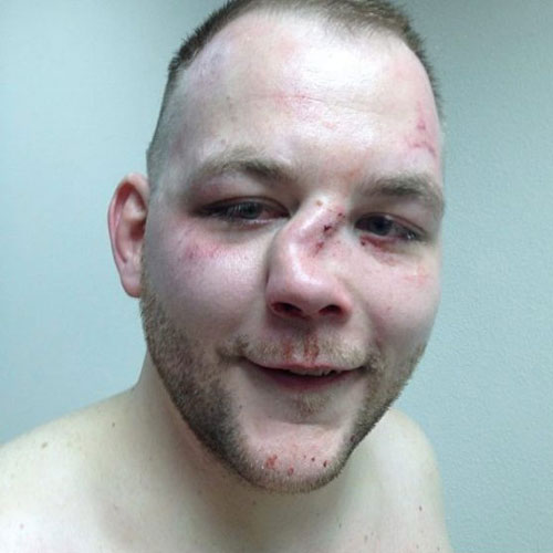 ANDY-EICHOLZ-mma-broken-nose