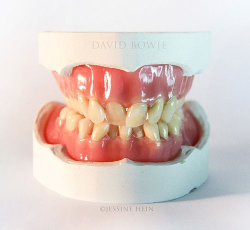 david-bowie-denture-art-sculpture